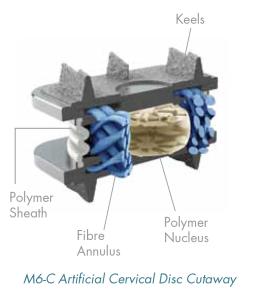 m6-c-artificial-cervical-disc-cutaway