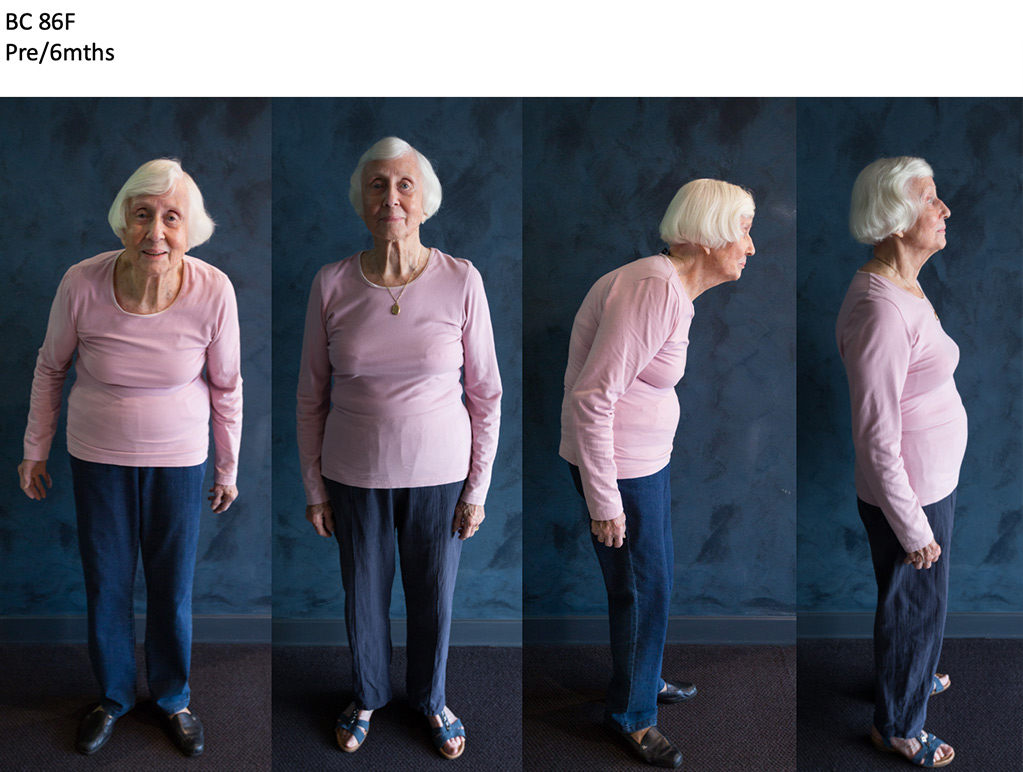 86 year old kypho-scoliosis